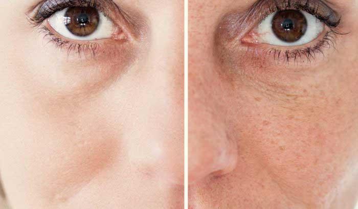 Prima e dopo crema Collagena Lumiskin