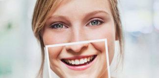 Risultati del Kit sbianca denti InLumina