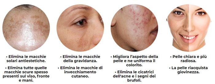 Risultati della crema per sbiancare la pelle White Effect